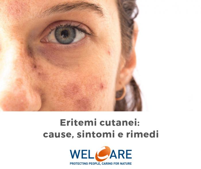 Eritemi Cutanei: cause, sintomi e rimedi