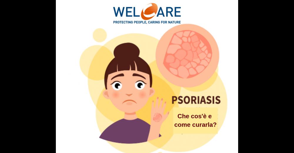 La Psoriasi: che cos'è e come curarla
