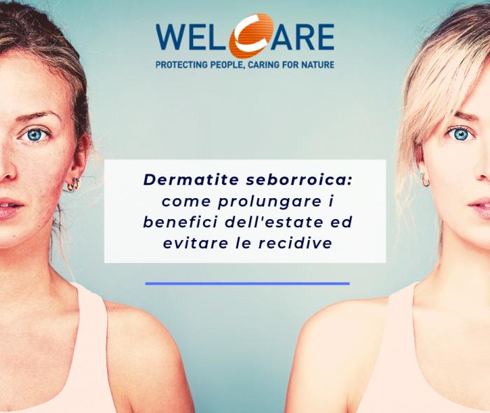Dermatite Seborroica d'estate: come contrastarla mantenendo i benefici del sole
